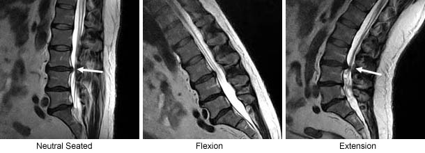 Fluctuating Spinal Stenosis Aggravated by the UPRIGHT � Extension Position
