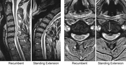 Fluctuating Spinal Stenosis & Position-Dependent Disc Herniation