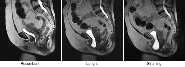 MRI Visualization of Position-Dependent Changes in the Pelvis: Pelvic Floor Dysfunction (PFD)